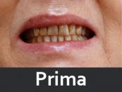 protesi-dentale-prima